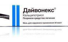 Лечение Псориаза В Омске
