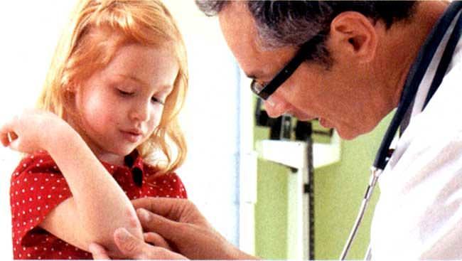 Симптомы псориаза у детей