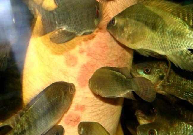 Лечения псориаза рыбками