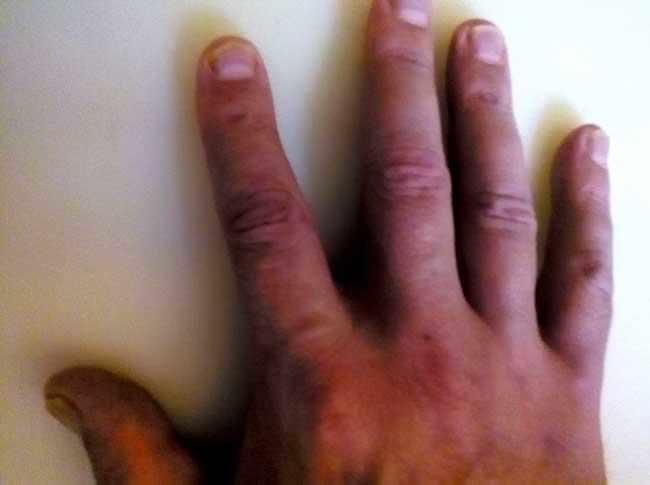 Псориаз ногтей пальцев рук