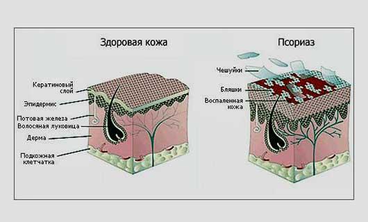 Иммунная теория