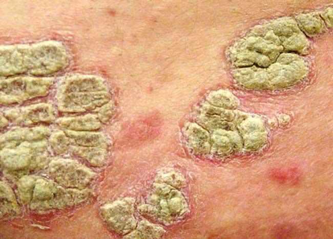 Экссудативный псориаз - лечение