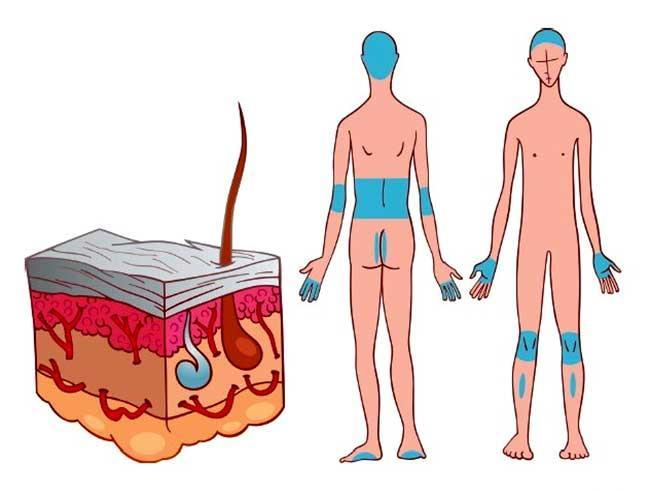 сорбит от диабета
