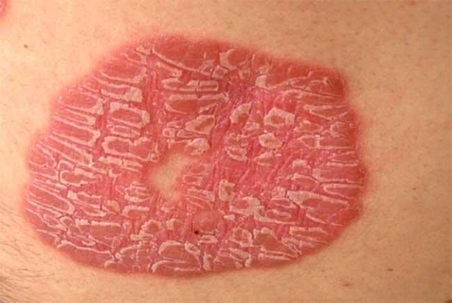 Вульгарный псориаз симптомы