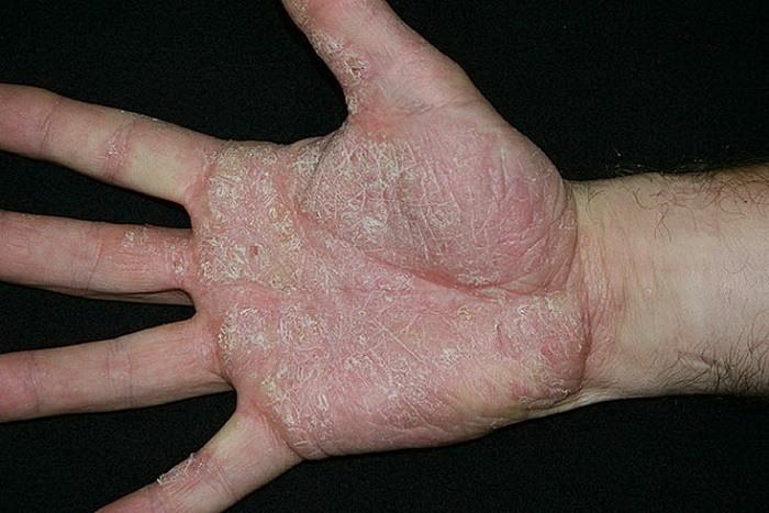 Разновидности псориаза на руках