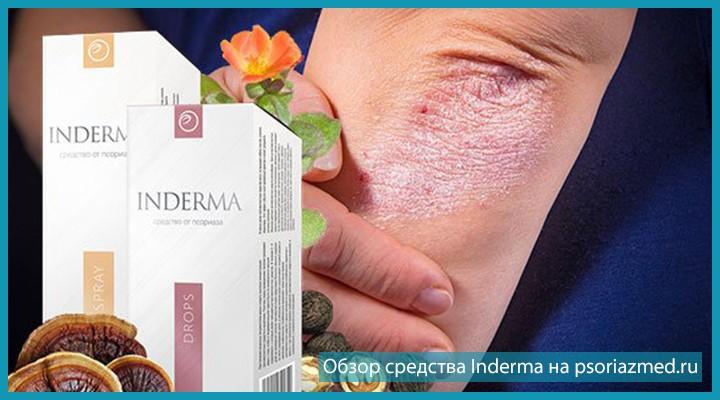 Лечение Inderma