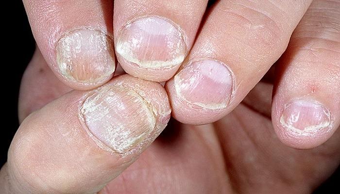 Клинические варианты псориаза ногтей